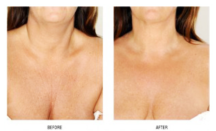 Dermal Fillers Montesa Medical Group By Shimmian Manila